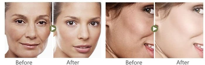 aclarador natural de la piel